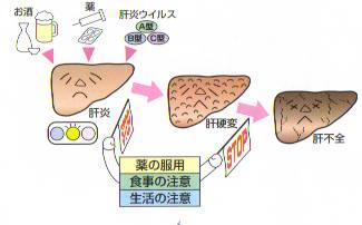 liver-ns11