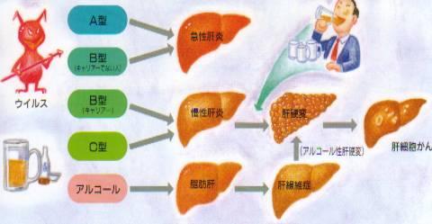 liver-ns12