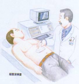 liver-ns19