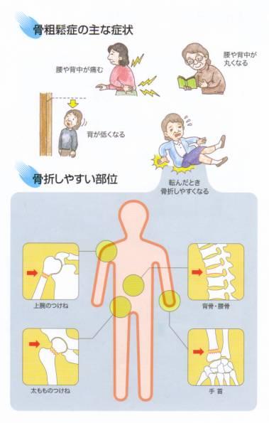 骨粗しょう症の検査法